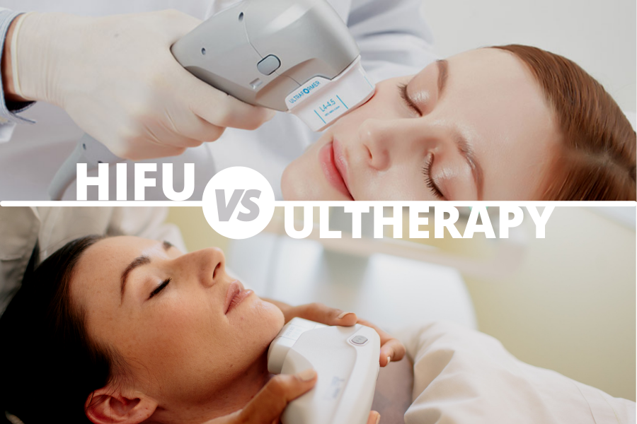 Ultherapy (MFU) vs High Intensity Focused Ultrasound (HIFU) explained.