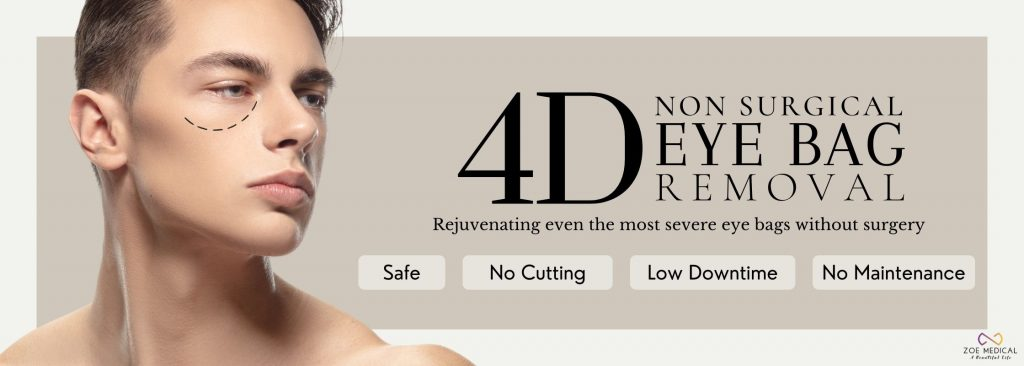 non surgical eyebag removal