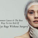 Eye bag treatment at Zoe Medical