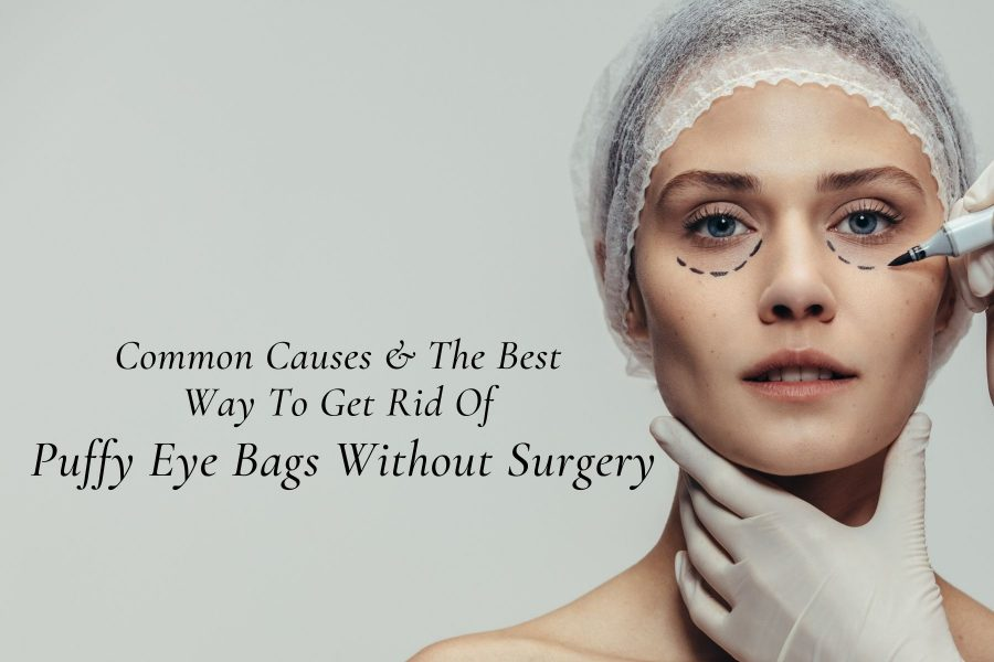 Common Causes & The Best Way To Get Rid Of Puffy Eye Bags Without Surgery