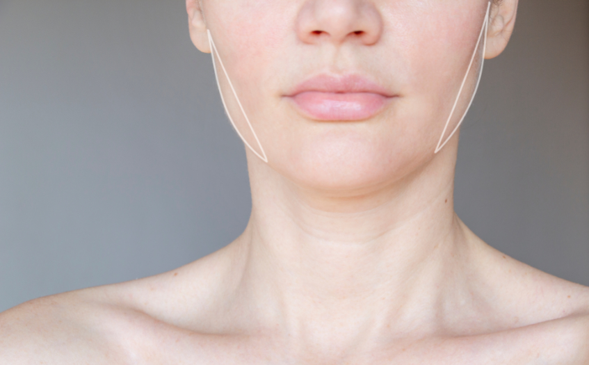 Masseter Jaw Botox