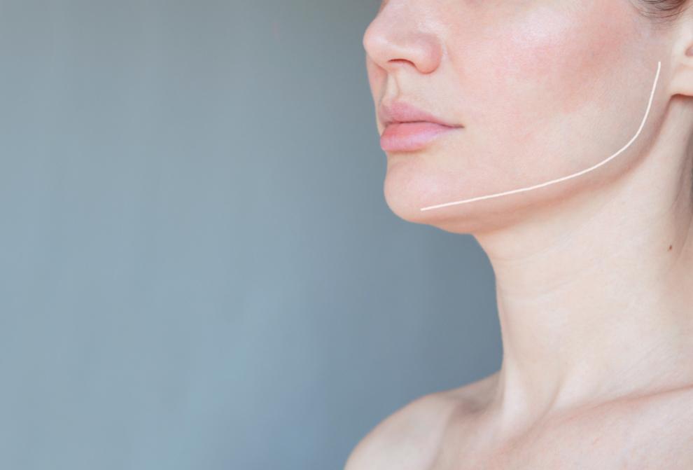 Nefertiti lift Botox