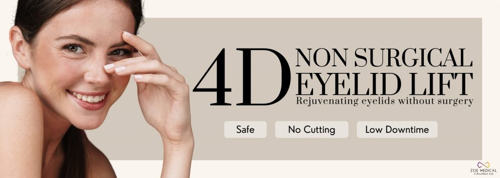 Non surgical 4D eyelid Lift