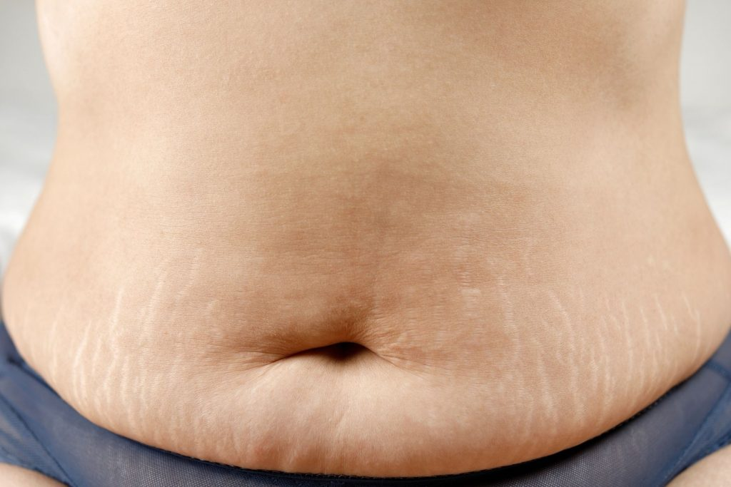 Stretch Marks removal treatments at Zoe Medical