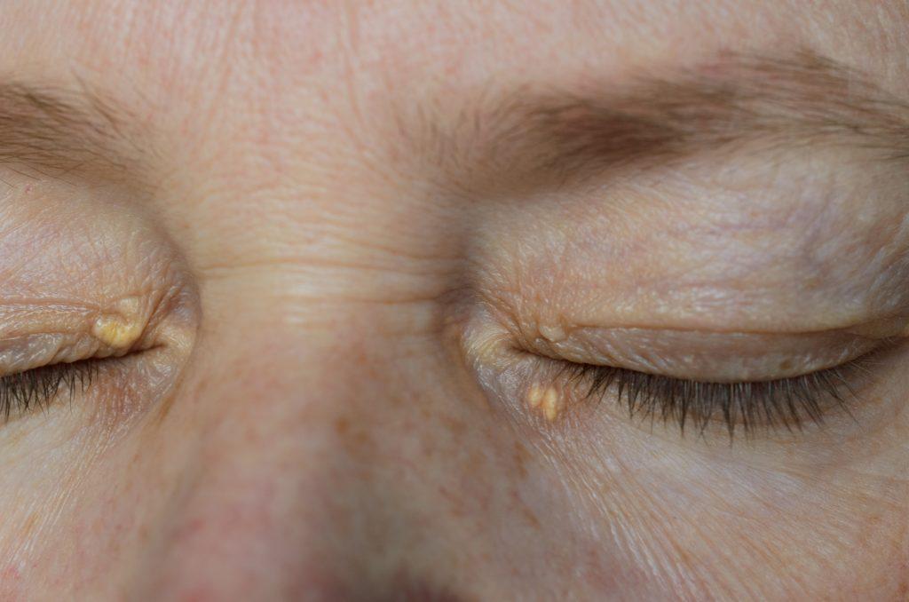 Xanthelasma Removal at Zoe Medical