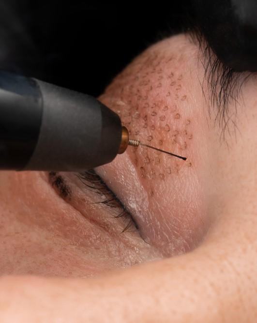 Plasma Fibroblast skin tightening Treatment